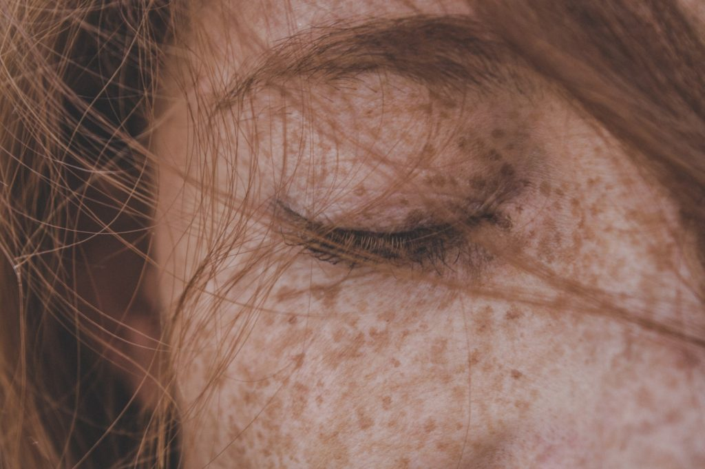 What You Need to Know About Hyperpigmentation (Part 1)