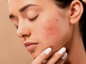Say Goodbye to Acne Scars – For Good (Part 1)
